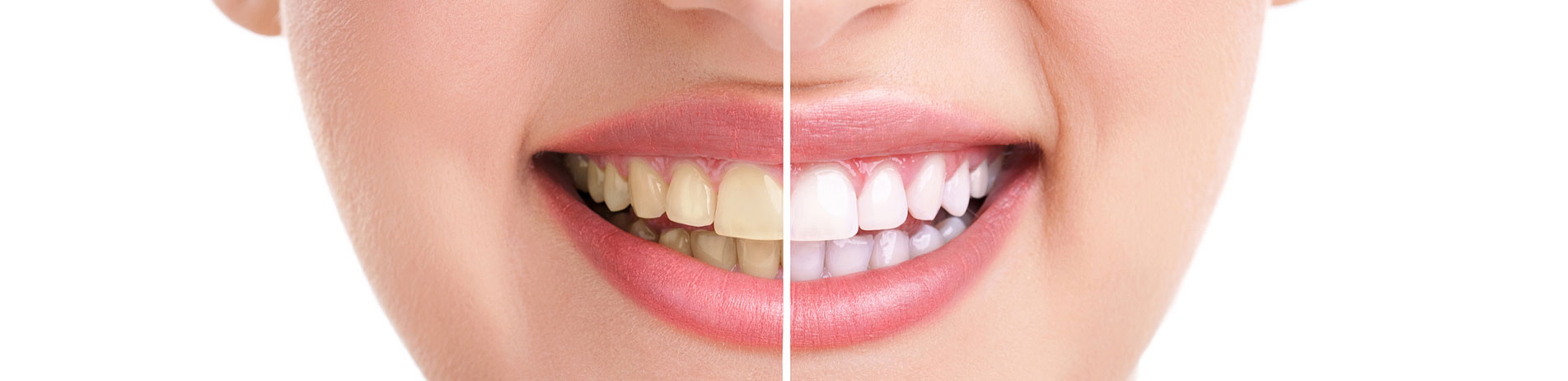 Bleaching für Zähne - Unterschied