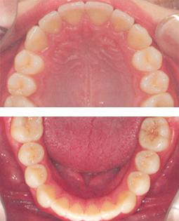 Zahnvergleich - Fall 1 - Nacher