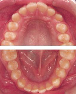 Zahnvergleich - Fall 2 - Vorher