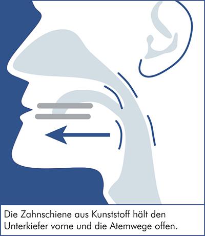 Beschreibung der Schnarcherschiene