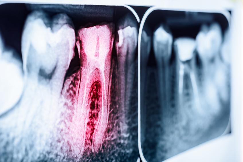 Röntgenbild von Zähnen