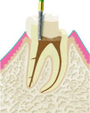 Wurzelbehandlung Abbildung 1.1