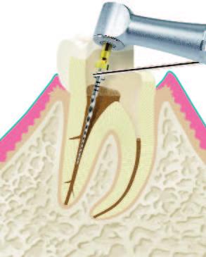 Wurzelbehandlung Abbildung 2.1