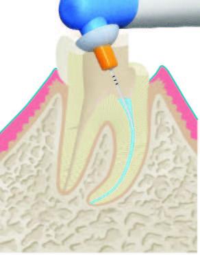 Wurzelbehandlung Abbildung 2.2