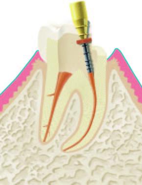 Wurzelbehandlung Abbildung 3.1