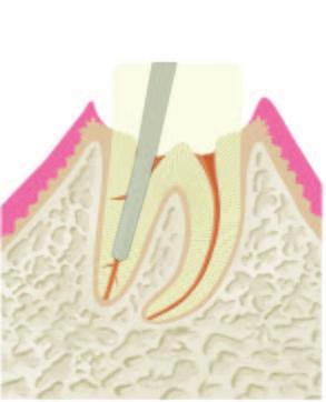 Wurzelbehandlung Abbildung 4.1