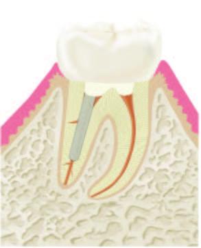 Wurzelbehandlung Abbildung 5.1