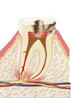 Ansicht - Zahn - Wurzel